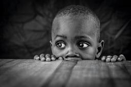 フォトグラファー・オブザイヤー、ベルガウワ氏の『Life in a Leprosy Village』