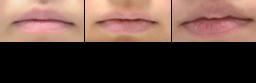 唇のあれへのアプローチ