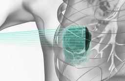 陽子線がん治療装置用の小型スキャニング電磁石の開発に成功
